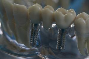 Quelle: Initiative proDente_Zahnimplantate mit Knochenaufbau