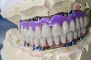 Neue Zähne an einem Tag – auf nur vier Zahnimplantaten | Quelle: shutterstock_sunlight19