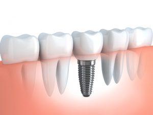 Zahnersatz auf Implantaten bei Zahnarzt Dr. Ludwig in Fürth/Nürnberg -Quelle: shutterstock_156787064_vladfree_web