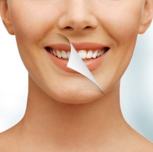 Bleaching: Strahlend weiße Zähne | Zahnarzt Fürth