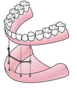 Vier Zahnimplantate für feste Zähne: All-on-4 | Zahnarzt Fürth