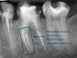 Wurzelkanal ohne Instrument   Quelle: Zahnarztpraxis Dr. Ludwig und Kollegen