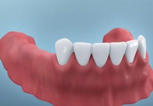 Fehlende Backenzähne - eine zahnmedizinische Herausforderung | Quelle: Inititative pro Dente e.V.