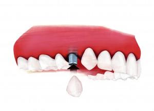 Die optimale Zahnimplantat-Heilung | © Initiative proDente e.V.