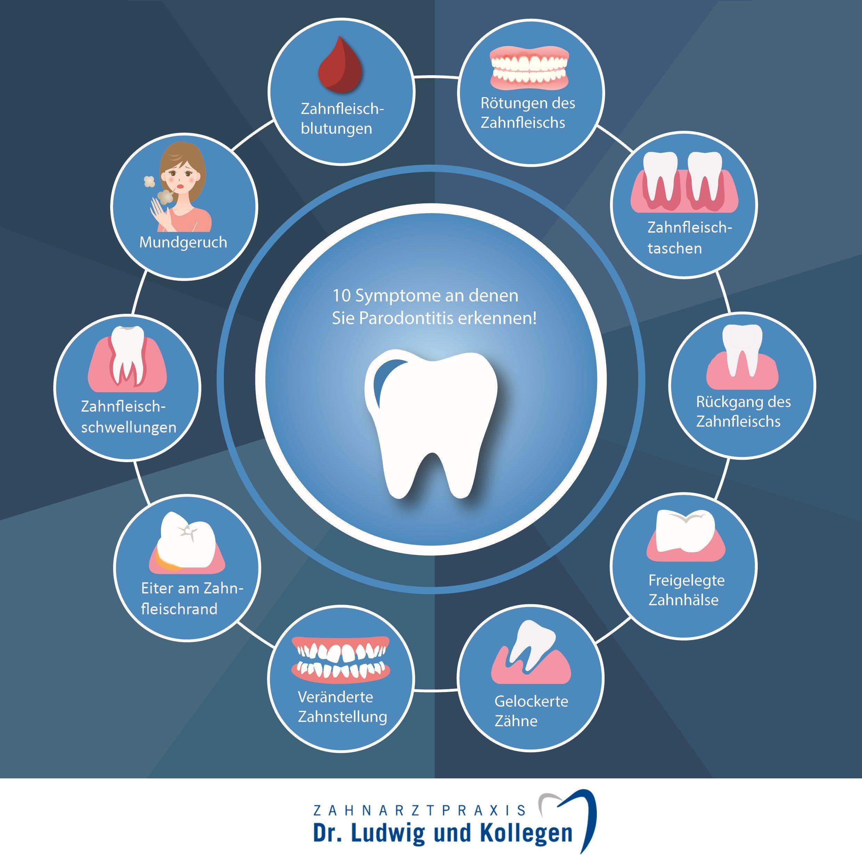 Parodontitis Behandlung: Symptome der Erkrankung | © Zahnarzt Dr. Ludwig und Kollegen
