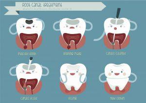 Wurzelbehandlung | Zahnarzt Fürth
