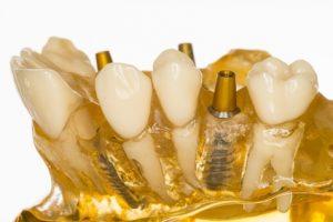 Zahnimplantate: Künstliche Zahnwurzeln | Zahnarzt Fürth; Quelle: Christoph Hähnel_fotolia.com